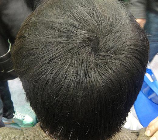 Hair Builder, Hair Maker - Пышные волосы за 5 минут. Так стало, фото1.