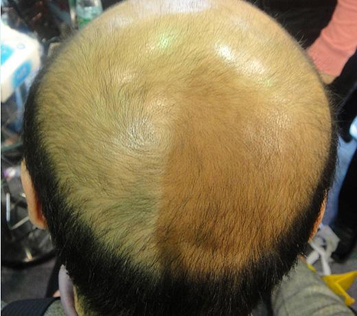 Hair Builder, Hair Maker - Пышные волосы за 5 минут. Так было, фото 2.