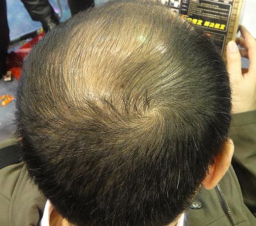 Hair Builder, Hair Maker - Пышные волосы за 5 минут. Так было, фото 7.