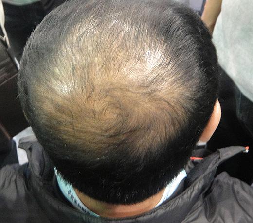 Hair Builder, Hair Maker - Пышные волосы за 5 минут. Так было, фото 8.
