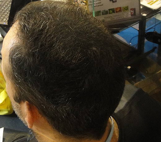 Hair Builder, Hair Maker - Пышные волосы за 5 минут. Так стало, фото 9.