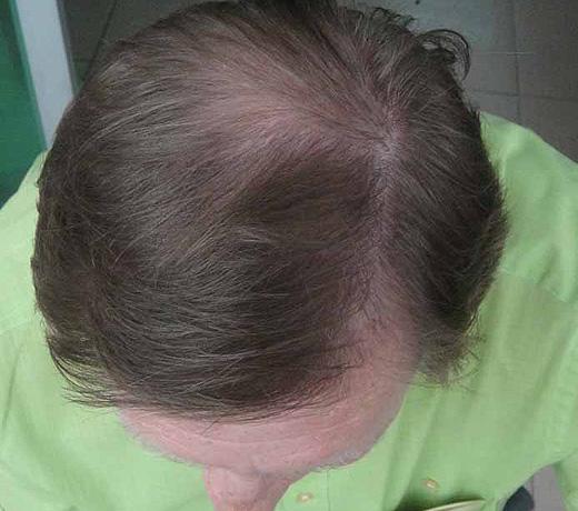 Hair Builder, Hair Maker - Пышные волосы за 5 минут. Так было, фото 10.